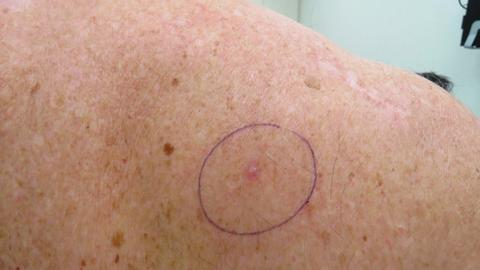 Laser therapy may be practical for some basal cell carcinomas