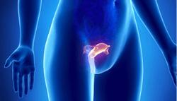 Uterine Fibroid Embolization: Past, Present, and Future