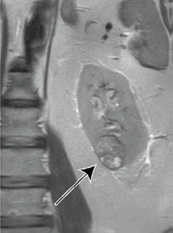 MRI-Derived Score Helps Determine Renal Mass Growth Rate