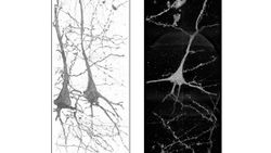 X-ray Reveals Neuron Differences in Patients with Schizophrenia