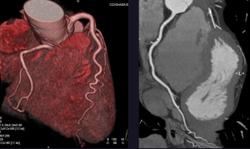 Using Cardiac CTA Before TAVR to Assess Left Atrium Parameters May Predict Mortality