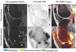 New MRI Approach Helps Assess Knee Osteoarthritis Progression