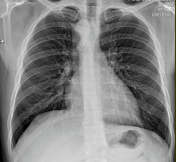 Image IQ Quiz: Asymptomatic Patient Presents with Respiratory Symptoms