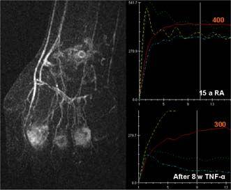 Mri And Ultrasound Reveal Early Signs Of Rheumatoid Arthritis