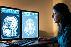 MRI Shows Focused Ultrasound May Induce Immunological Response in Alzheimer's Patients