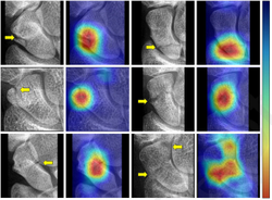 AI System Detects Frequently Overlooked Fractures on X-ray