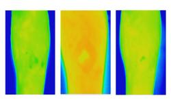 Thermal Imaging Predicts Venous Leg Ulcer Healing