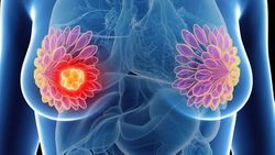 Breast Cancer Tops Lung Cancer for No. 1 Diagnosis Worldwide