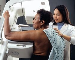 A Good Habit: Consecutive Screening Mammograms Drop Breast Cancer Mortality by Half