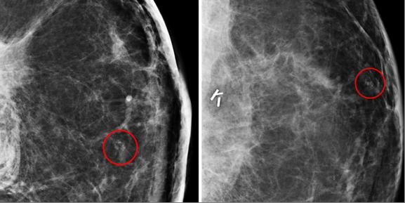 Post Mastectomy Bilateral Breast Mri Detects Asymptomatic Cancers