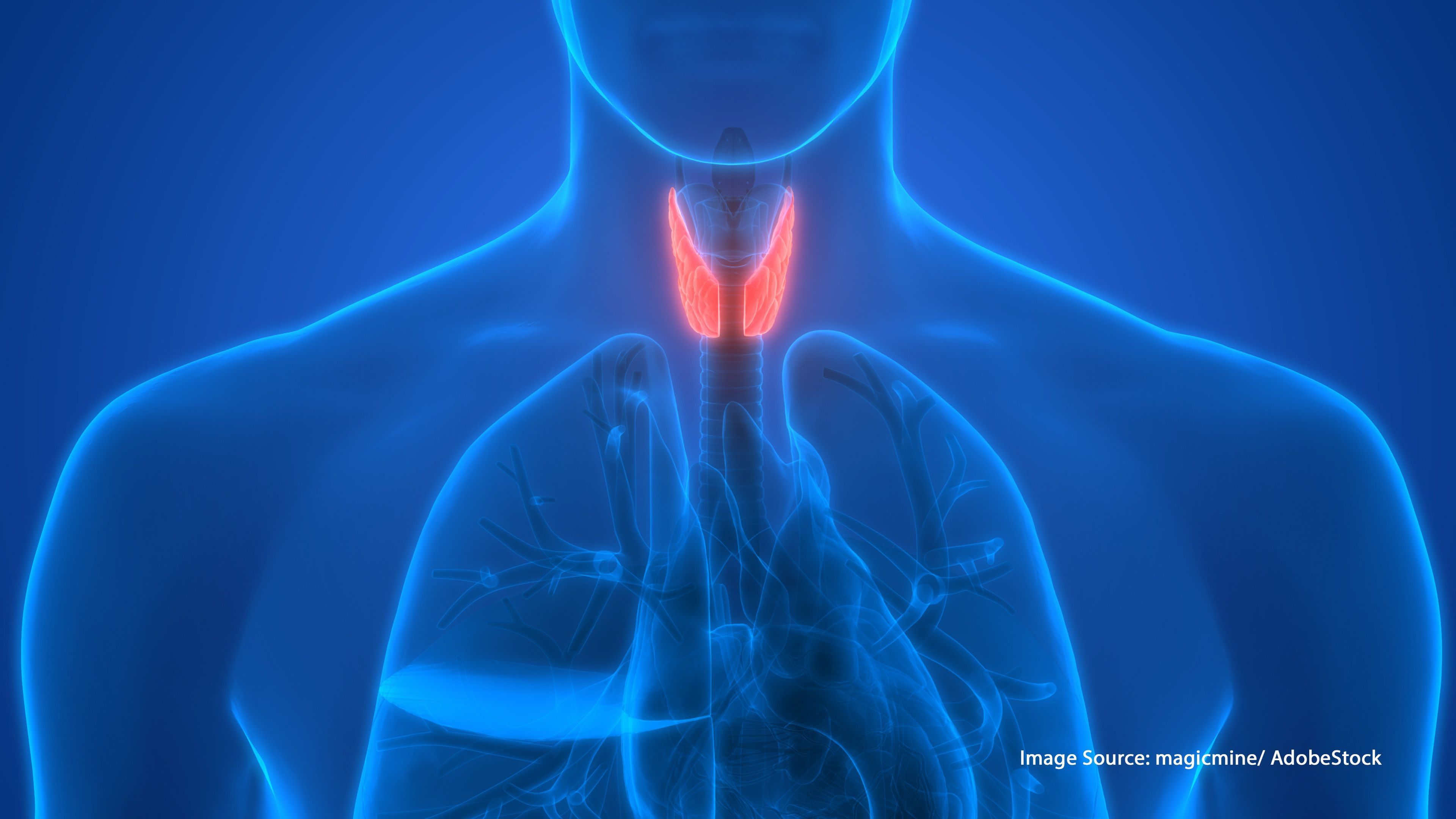Could Over Screening Be Behind Higher Thyroid Cancer Rates Among 9