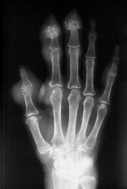 Image IQ Quiz: Patient Presents with Swollen Joints