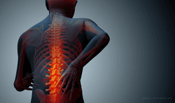 Emergency CT Use for Minor Spine Injuries Is On the Rise