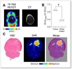 New Radiotracer Identifies Iron Levels in Tumors