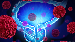 Prostate Cancer Control Improved by Adding PET Imaging to Treatment Planning