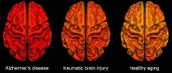 MRI Brain Scans Show Similarities Between TBI and Alzheimer's