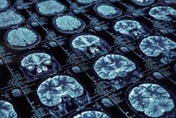 SpinTech's STAGE Rapid Brain-Imaging Technology Wins FDA 510(k) Clearance