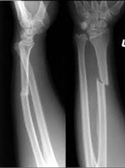 Don't Rely on X-rays to Determine Forearm Fracture Treatment