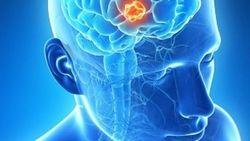 PET Imaging Identifies Efficacy of New Brain Metastasis Treatments