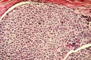 PET Imaging Reveals Efficacy of Novel Cancer Treatment