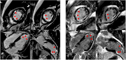 High-Performance, Low-Field MRI Provides Diagnostic Quality in Heart Attack Patients