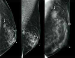 Understanding Breast Imaging Features of Transgender Women Is Key to Improving Care