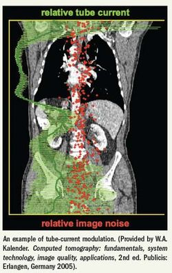 Outdated CT protocols called widespread in imaging units