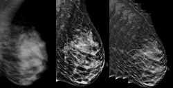 Digital Breast Tomosynthesis Shows Promise in Community Setting