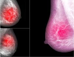 Breast MRI Background Parenchymal Enhancement May Indicate Neoadjuvant Chemotherapy Response
