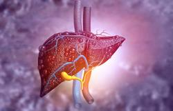 Early PET/CT Can Help Predict Treatment Response, Survival of Patients with Liver Cancer