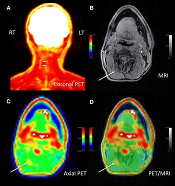 PET/MRI Can Specifically Pinpoint Chronic Pain Source