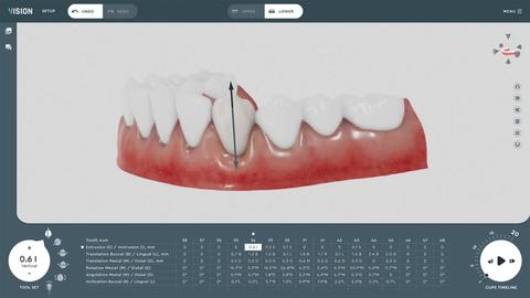 Solve My Problem: Aligner software that uses biomechanics and machine-learning
