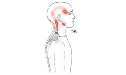 Ergonomics: A headache behind the eye