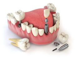 How to choose between cement-retained or screw-retained implants