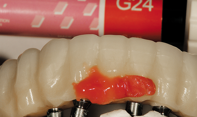 05 The author next applied ceramic composite, GC AmericaGradia #24 first, and then overlaid it with Gradia #23. The application was intended to imitate natural gum tissue for the patient in the mouth. The author next contoured and shaped the gum area.