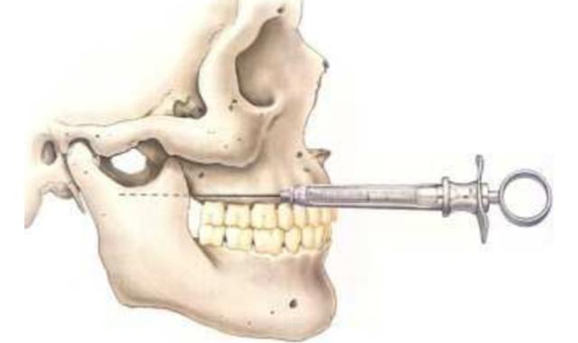 Vazirani-Akinosi Cloused Mouth Mandibular Block