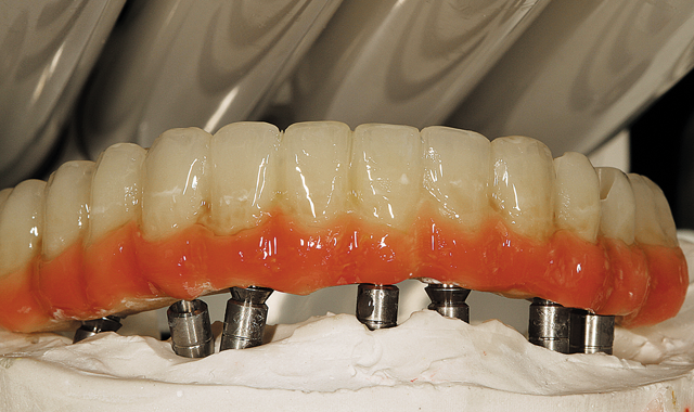 Step 11 Next, we see the results of the light-curing stage. We can note the difference between the three colors and the maximizing and mimicking of the natural tooth colors with white, blue, ochre and ivory stains, which appear to be different in each application.