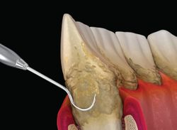 Periodontal Priorities: The Diagnostics and Treatment Changing Perio Care