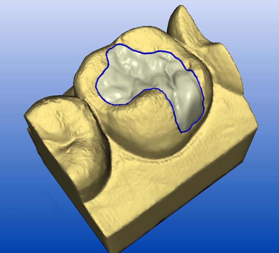 CEREC 3D design software