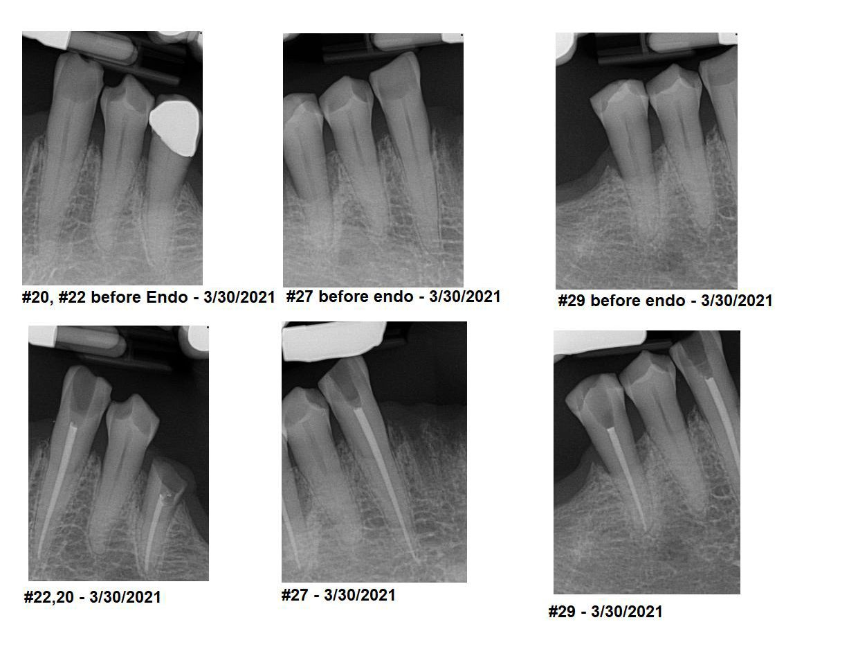 Figure 10. Pre-op and post-op radiographs of completed F-360 therapies (Komet USA).