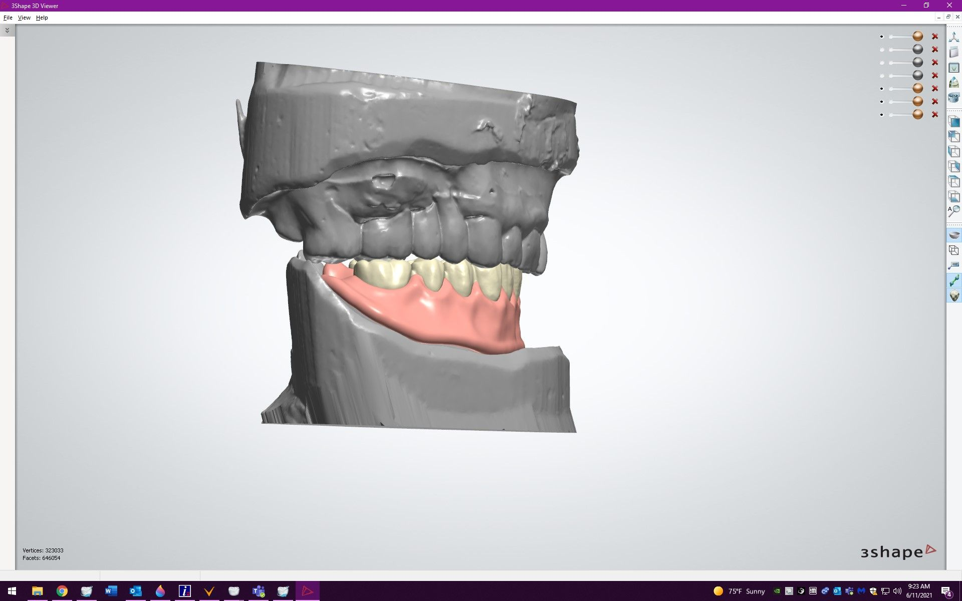 Figure 17. Virtual lateral view of final setup prior to processing.