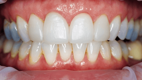 How to conduct noninvasive crown lengthening with Solea
