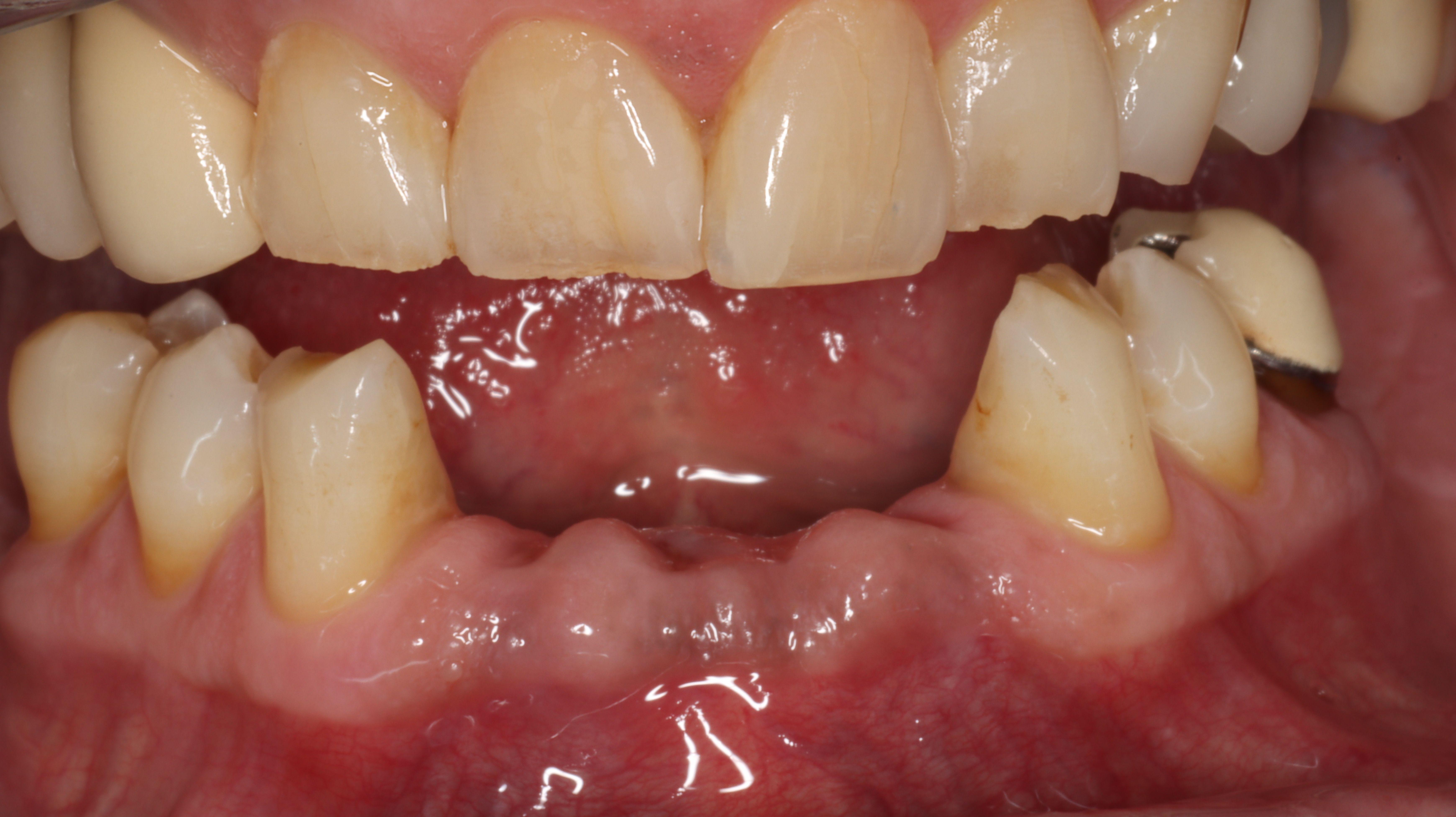 Figure 3. Four weeks post-extractions of mandibular incisors. Begin RPD fabrication
