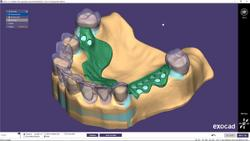 exocad's New Module PartialCAD 3.0 Galway Includes Advanced Design Features