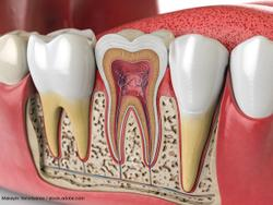 6 Myths Patients Believe About Root Canals