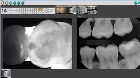 How to gain an inside view of caries using detection technology