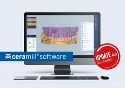 Amann Girrbach Updates Ceramill Software