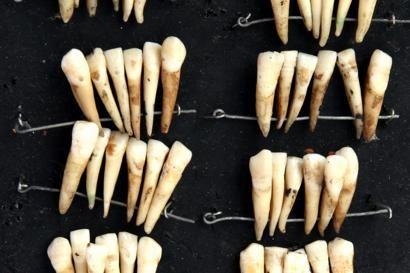 photo courtesy of the British Dental Association Museum