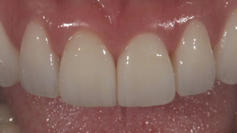 Dental zirconia and keys for clinical success