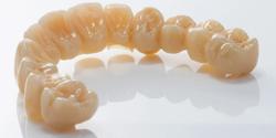 Zahn Dental Announces the Launch of Zirlux Transitions Zirconia